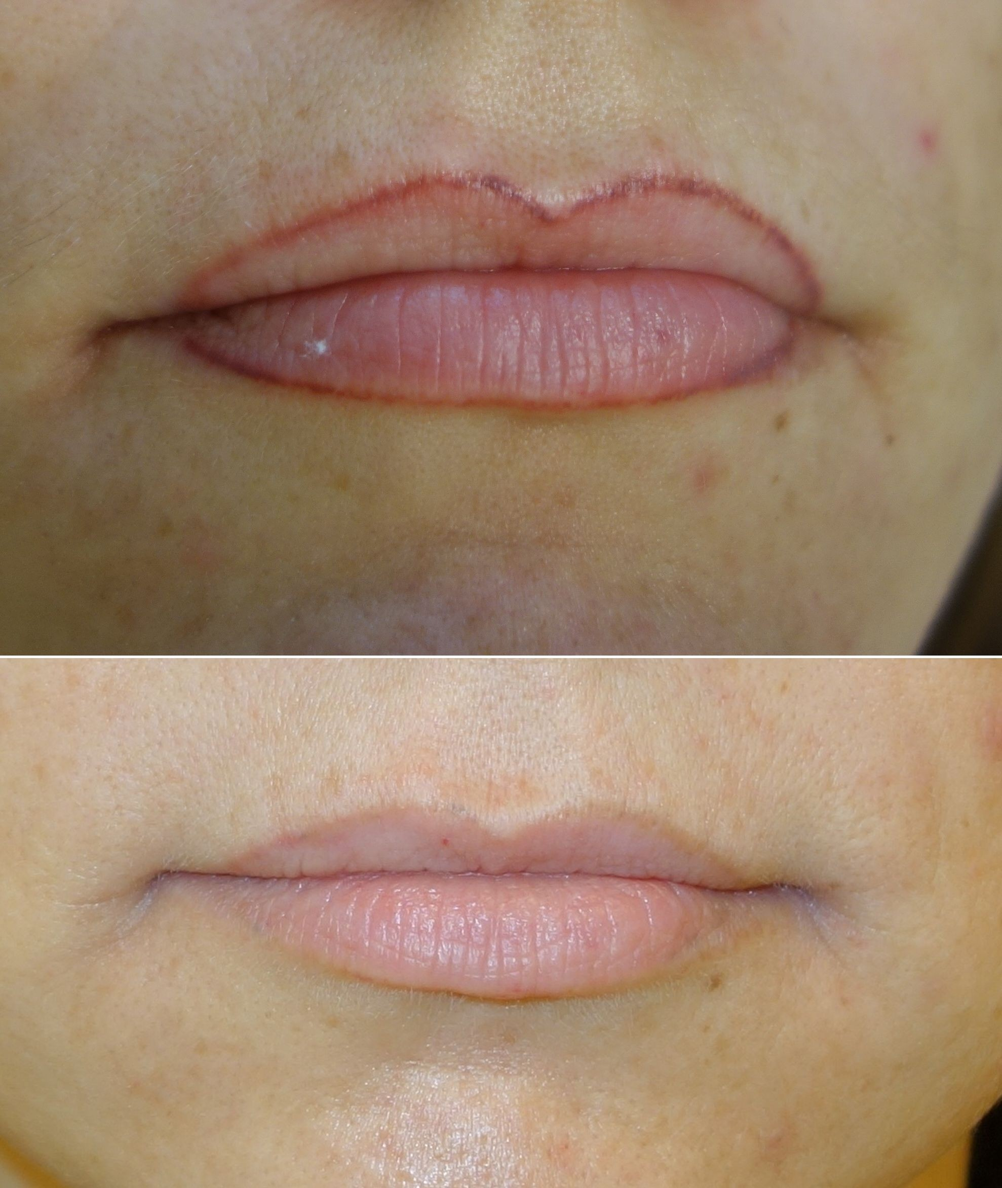 Laser removal as the main approach of defective permanent make up and tattoo correction.